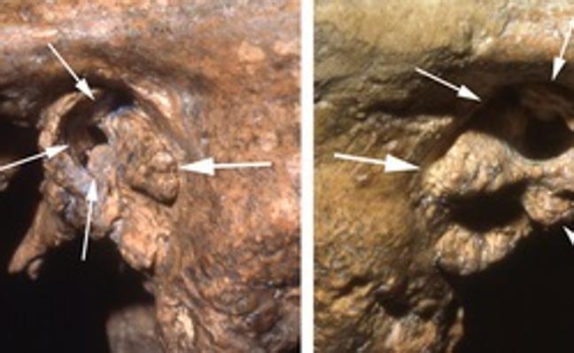 Un neandertal discapacitado recibió cuidados para llegar a la vejez
