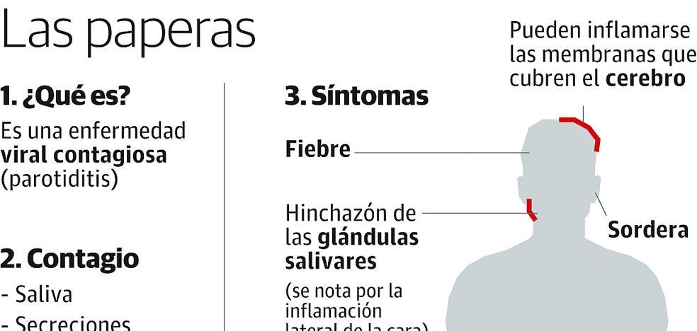 Los brotes de paperas acumulan en La Rioja 297 casos desde el pasado año
