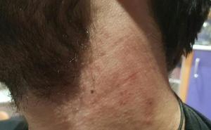Un hombre sufre una agresión homófoba en Logroño