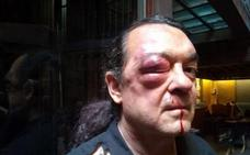 Dos detenidos por la agresión al líder de Imagina Podemos en Castilla-La Mancha