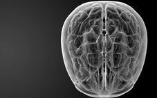 El San Pedro pondrá en marcha este año una Unidad de Rehabilitación de Daño Cerebral