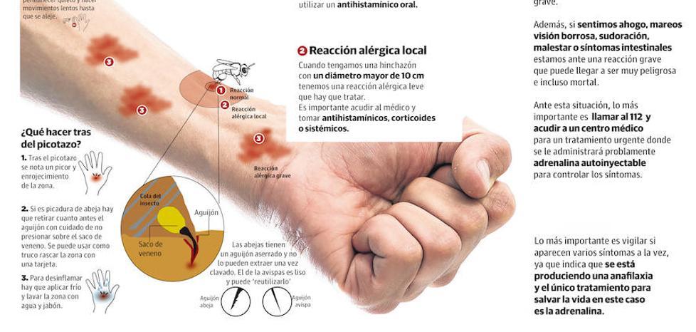 Salud administra a 35 riojanos las vacunas contra la alergia al veneno de avispa y abeja