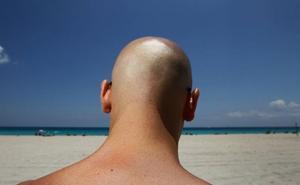 La caída del pelo, más que moda
