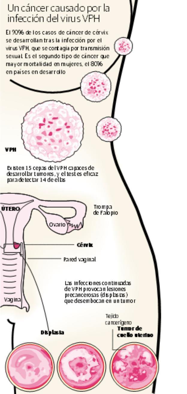 como se detecta el cancer del utero