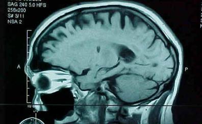 La terapia CART acaba con el cáncer cerebral