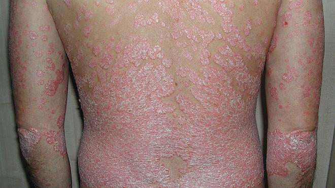 La psoriasis aumenta su prevalencia en un 10,7% en la última década